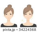女性(にきび) 34224368