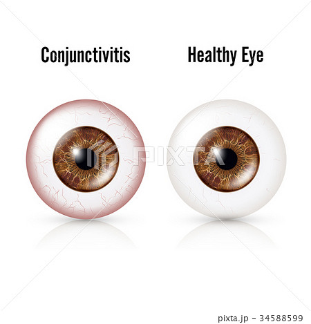 Conjunctivitis. Red Eye. Healthy Eye 34588599