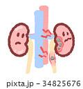 石がある腎臓 34825676