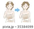 女性 白髪 髪のイラスト 35384099