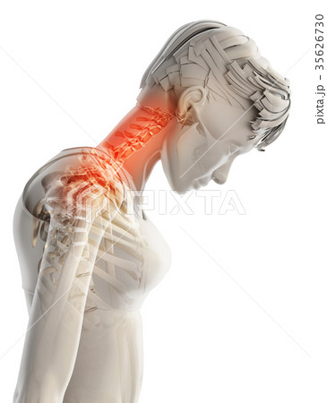 Neck painful - cervical spine, 3D illustration. 35626730