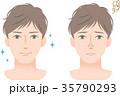 男性 スキンケア 鼻の黒ずみ 35790293