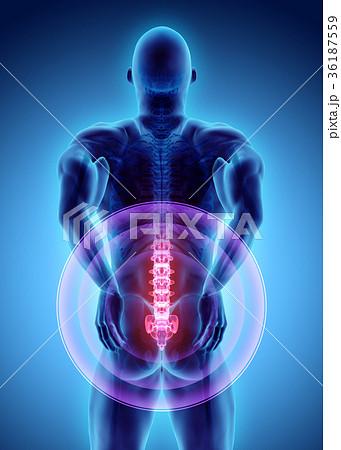 3D Illustration of sacral spine painful. 36187559