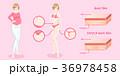 woman with stretch mark skin 36978458