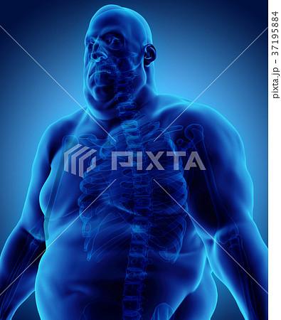 3d illustration Male Fat, healthcare concept. 37195884