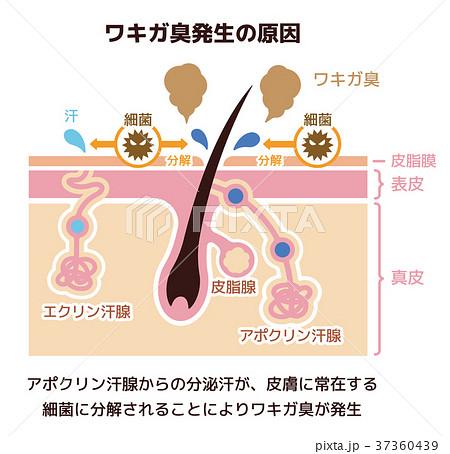 ワキガ臭発生の原因イラスト (腋臭・わきが) 37360439