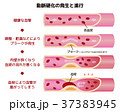 動脈硬化の発生と進行のイラスト 37383945