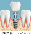 Human teeth and dental implant 37523209