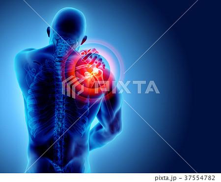 Shoulder painful skeleton x-ray, 3D illustration. 37554782