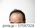 男性 ミドル 薄毛の写真 37597328