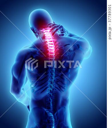 Neck painful skeleton x-ray, 3D illustration. 37789301