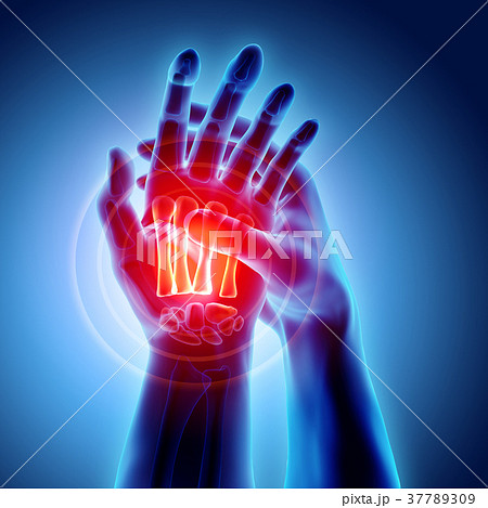 Palm painful - skeleton x-ray, Medical concept. 37789309