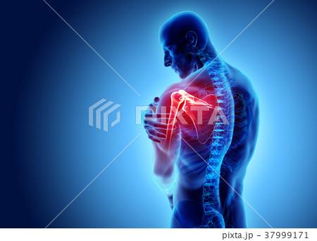 Shoulder painful skeleton x-ray, 3D illustration. 37999171