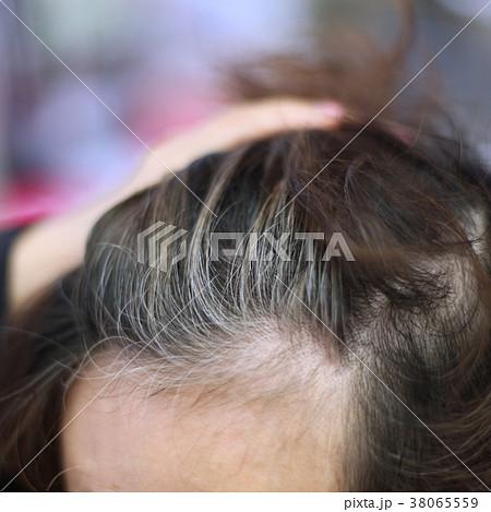 白髪が出てき始めた髪 38065559