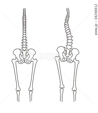 身体の歪み 骨格比較 38298912