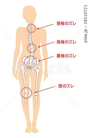身体の歪み_女性 38310721