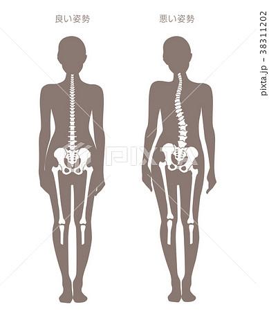 身体の歪み比較 女性 38311202
