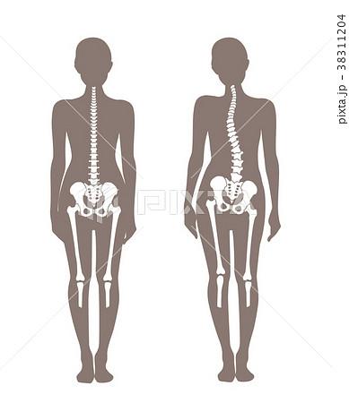 身体の歪み比較 女性 38311204