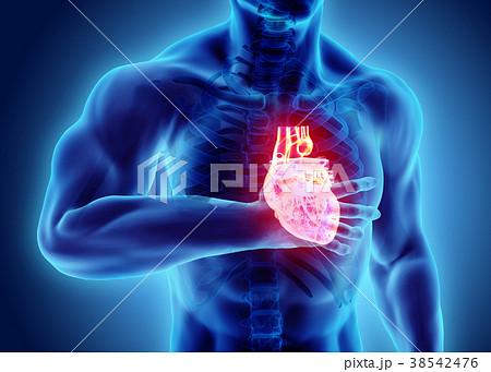 3d illustration of human heart attack. 38542476