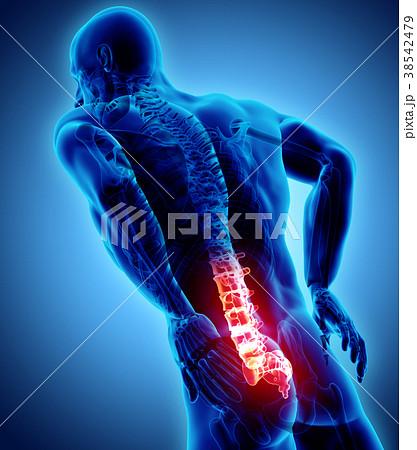 3D Illustration of sacral spine painful. 38542479