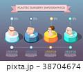 手術 プラスチック プラスティックのイラスト 38704674