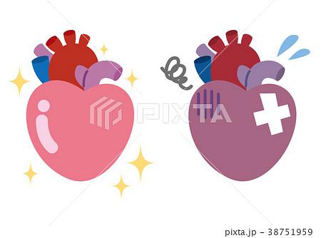 健康な心臓 弱った心臓 臓器 医療 38751959