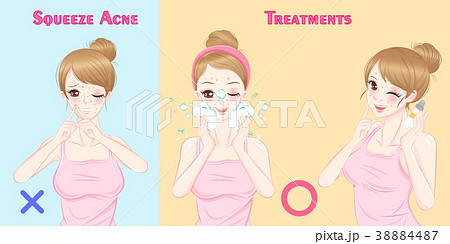 woman with acne problem 38884487
