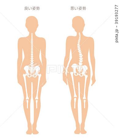 身体の歪み比較 女性 39193277