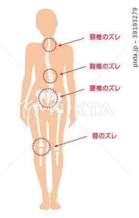 身体の歪み_女性 39193279