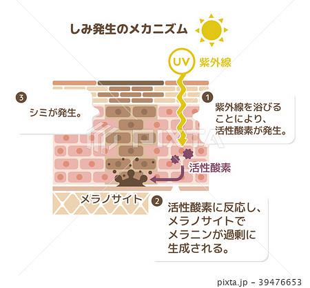 しみ発生のメカニズムイラスト (解説文つき) 39476653