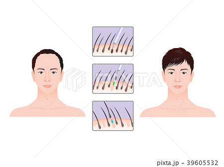 vector a plastic surgery for face and beauty before and after