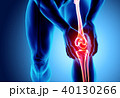 Knee painful - skeleton x-ray. 40130266