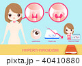 woman with hyperthyroidism 40410880
