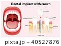 デンタル 歯科 ベクタのイラスト 40527876