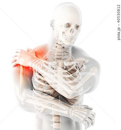 Shoulder painful skeleton x-ray, 3D illustration. 40530812