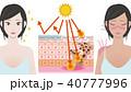 日焼け メカニズム 女性のイラスト 40777996