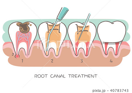 tooth with root canal treatment 40783743