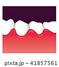 歯ぐきの腫れ 歯周病 41857561