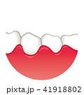 歯ぐきの腫れ 歯周病 41918802