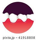 歯ぐきの腫れ 歯周病 41918808