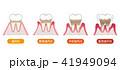 歯周病の進行 41949094