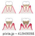 歯周病の進行 41949098