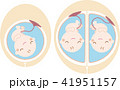 胎児 赤ちゃん 双子のイラスト 41951157