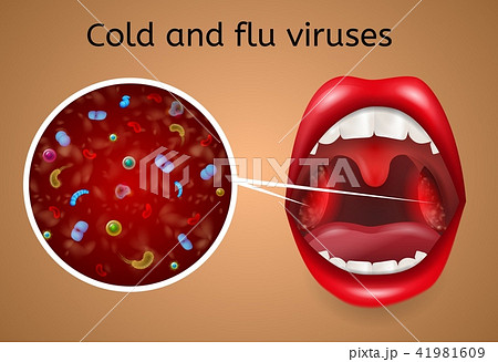 Cold and Flu Viruses Symptoms Vector Concept 41981609