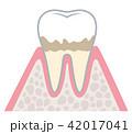 歯周病の進行 42017041