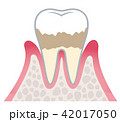 歯周病の進行 42017050