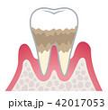 歯周病の進行 42017053