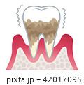 歯周病の進行 42017095