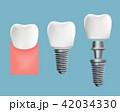 インプラント 歯 デンタルのイラスト 42034330
