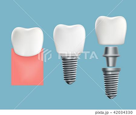 infographics of human teeth and dental implant 42034330